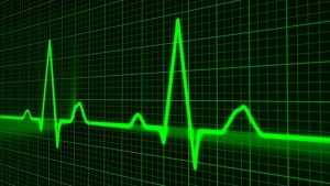 a pulse rate monitor