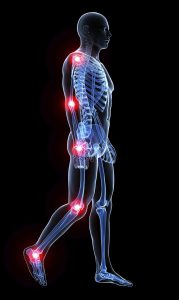problem areas for join pain